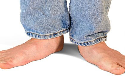 Flat feet: How physical therapy can help the pain